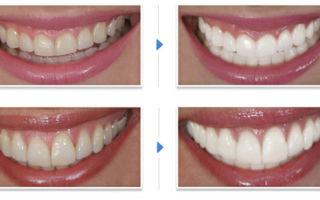 Отбеливание зубов активированным углем в домашних условиях — можно ли и как часто
