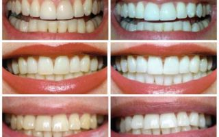Можно ли чистить пищевой содой зубы каждый день без вреда для эмали