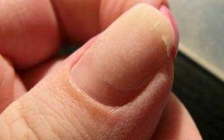 Как заклеить ноготь чайным пакетиком — реставрация трещин и разломов в домашних условиях