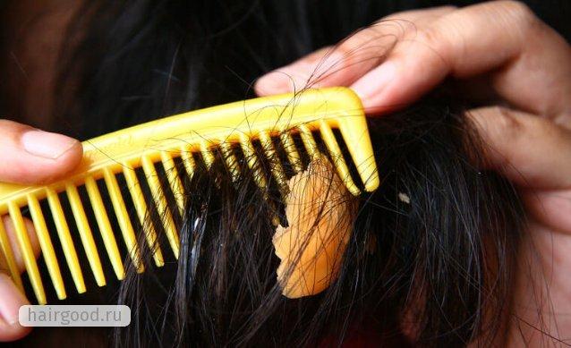 Как очистить волосы от жвачки: 4 способа