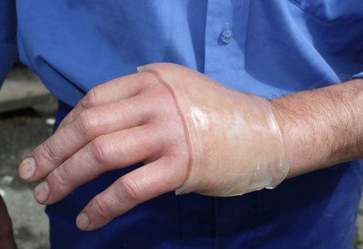 Как смыть Финалгон с кожи, чтобы быстро снять сильно жжение?